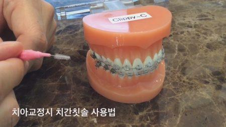 치아교정시 치간칫솔 사용법