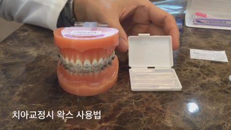 치아교정시 왁스 사용법