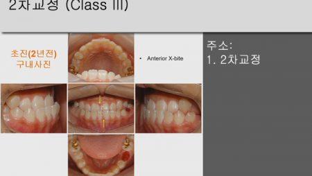 [Case Review][#4] 2차교정 (Class III)