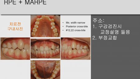 [Case Review][#5] RPE + MARPE
