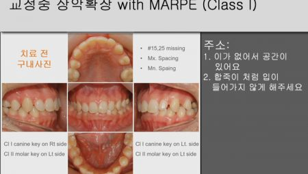 [Case Review][#6] 교정중 상악확장 with MARPE (Class I)