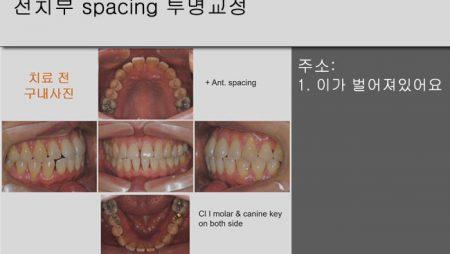 [Case Review][#7] 전치부 spacing 투명교정
