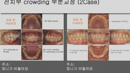 [Case Review][#8] 전치부 crowding 부분교정 (2Case)