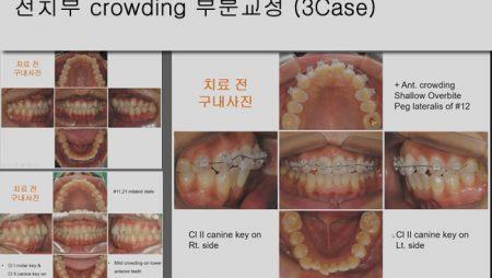 [Case Review][#9] 전치부 crowding 부분교정 (3Case)