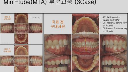 [Case Review][#10] Mini-tube(MTA) 부분교정 (3Case)