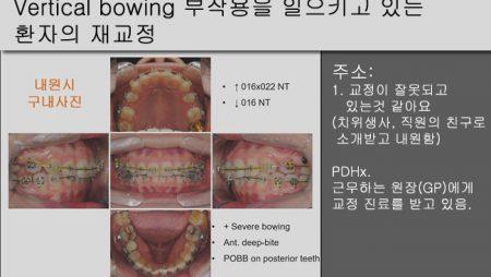 [Case Review][#14] Vertical bowing 부작용을 일으키고 있는 환자의 재교정