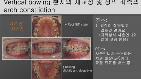 [Case Review][#15] Vertical bowing 환자의 재교정 및 상악 좌측의 arch constriction