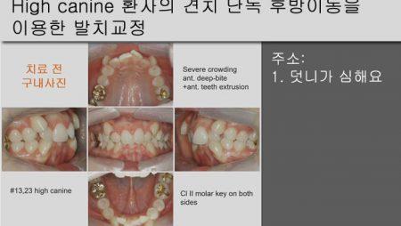 [Case Review][#16] High canine 환자의 견치 단독 후방이동을 이용한 발치교정