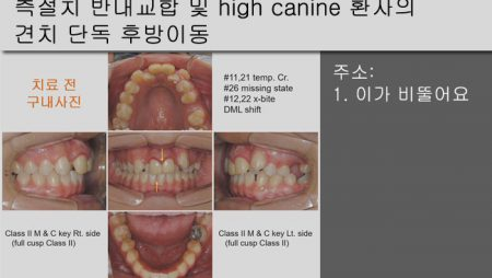 [Case Review][#18] 측절치 반대교합 및 high canine 환자의 견치 단독 후방이동