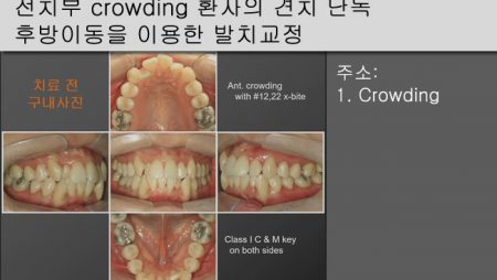[Case Review][#19] 전치부 crowding 환자의 견치 단독 후방이동을 이용한 발치교정