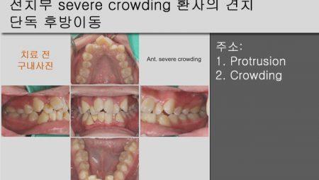 [Case Review][#20] 전치부 severe crowding 환자의 견치 단독 후방이동
