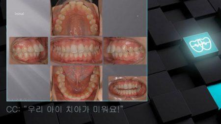 [교정 Case 329]  U4/L5 발치, Dental Protrusion, Dental Cl II, Gummy Smile Possibility.