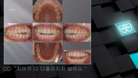 [교정 Case 646]  U5L5 발치, Dental Openbite, Dental Protrusion, Proclinded Upper Incisors, Gummy Smile Possibility.