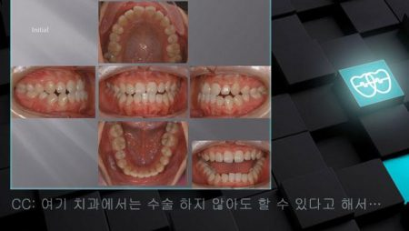 [교정 Case 805] Lower 4 발치, Skeletal Class III, Anterior Crossbite, Protrusion of Lower Lip, Lower Lingual Corticotomy.