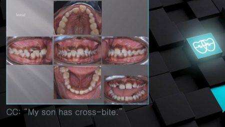 [교정 Case 996]  1차 교정, Anterior Crossbite, 시갈 버튼.