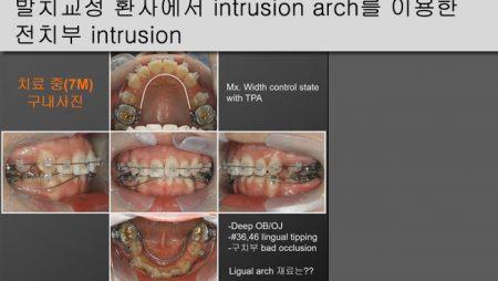 [Case Review][#21] 발치교정 환자에서 intrusion arch를 이용한 전치부 intrusion