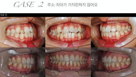 [교정 Case 2] 성장기 비대칭을 동반한 골격성 3급 부정교합 환자의 수술교정치료