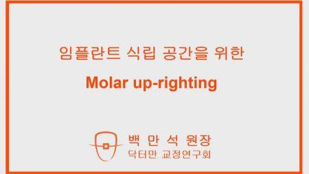 백만석원장 – 임플란트 식립 공간을 위한 molar uprighting
