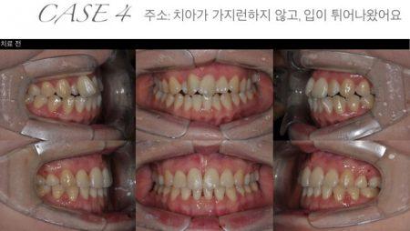 [교정 Case 4] 상악이 좁은 성인 환자에서 MA-RPE와 발치를 통한 교정치료.