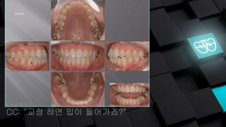 [교정 Case 545]  U5L4 발치, Mild Anterior Crossbite, Dental Protrusion, Miniscrew의 응용으로 Upper Molar의 Anchorage 보강.