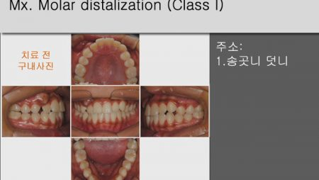 [Case Review][#1] Mx. Molar distalization (Class I)