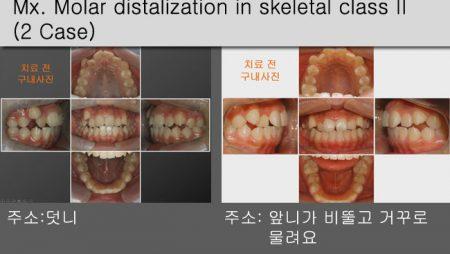 [Case Review][#23] Mx. Molar distalization in skeletal class II (2Case)