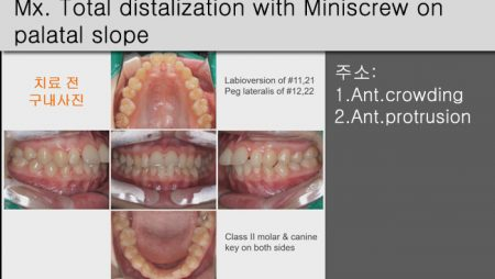 [Case Review][#24] Mx. Total distalization with Miniscrew on palatal slope