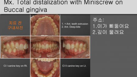 [Case Review][#25] Mx. Total distalization with Miniscrew on Buccal gingiva