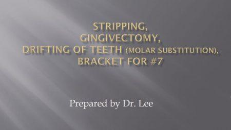 [강의 17] Stripping, Gingivectomy, Drifting of teeth, Molar Substitution, DBS of #7.