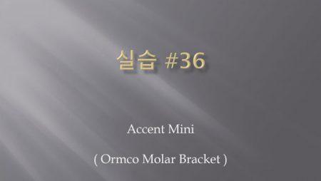 [실습 36] Accent Mini (Molar Tube)