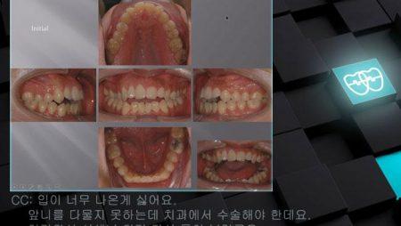 [교정 Case 838]   U5L4 발치, Skeletal Cl III, Dental Openbite, Severe Overjet, Protrusion Profile, Lower Lingual Corticotomy.