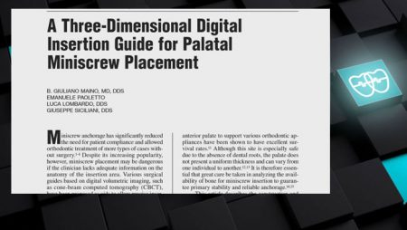[ J 3.5]   Three-Dimensional Digital Insertion Guide for Palatal Miniscrew Placement