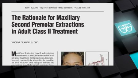 [ J 24]   The Rationale for Max 2nd Premolar Extractions in Adult Class II Treatment