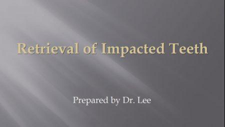 [강의 34] Seminar #14 – Retrieval of Impacted Teeth