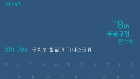2018 부분교정 연수회 5th Day: 구치부 함입과 미니스크류