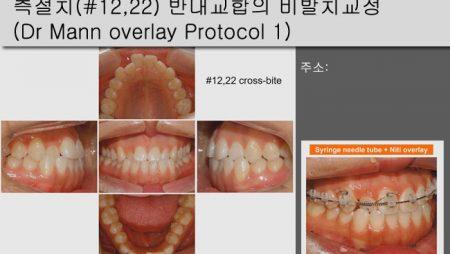 [Case Review][#28] 측절치(#12,22) 반대교합의 비발치교정(Dr Mann overlay Protocol 1)