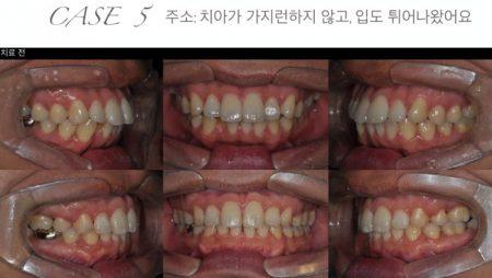 [교정 Case 5] 심한 돌출을 보이는 환자의 발치 교정치료.