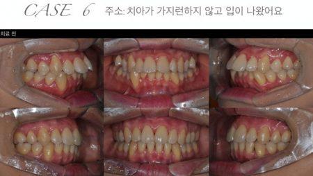 [교정 Case 6] 심한 공간부족을 보이는 환자의 SA-RPE와 발치를 이용한 교정치료