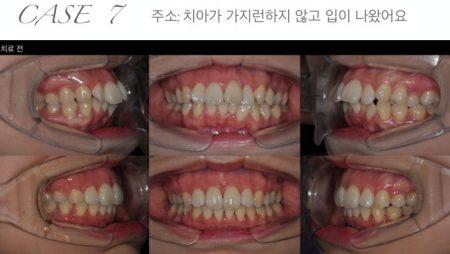 [교정 Case 7] 턱관절 증상과 심한 크라우딩을 보이는 골격적 2급 부정교합 환자의 교정치료