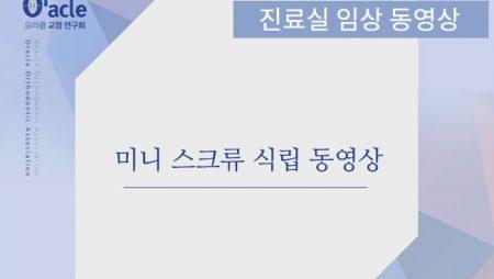 미니 스크류 식립 동영상