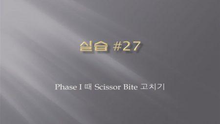 [실습 27] Phase I 때 Scissor Bite 고치기