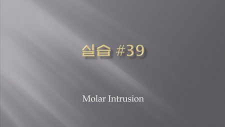 [실습 39] Molar Intrusion