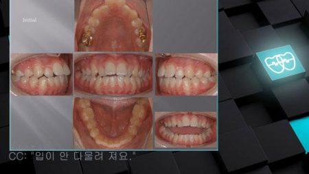 [교정 Case 347] U5 발치, Dental Openbite, Big Anterior Overjet, Lower Stripping.