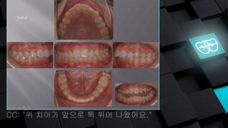 [교정 Case 419] U4 발치, Dental Class II, Big Overjet, Deep Curve of Spee.