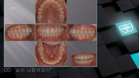 [교정 Case 421] U4L5 발치, Skeletal Class I, 돌출입, 여자, Gummy Smile 가능성.