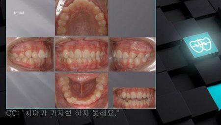 [교정 Case 530] U4L4 발치, Protrusion, Lip Incompetency, U5번 앞 Miniscrew 위치.