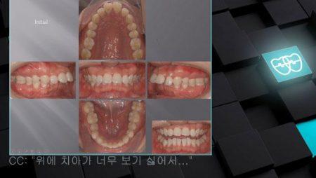 [교정 Case 537] U4 발치, Class II, Big Overjet, Dental Deepbite.