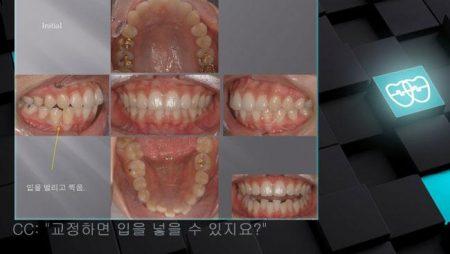 [교정 Case 546] U5L5 발치, Protrusion, Possible Gummy Smile.