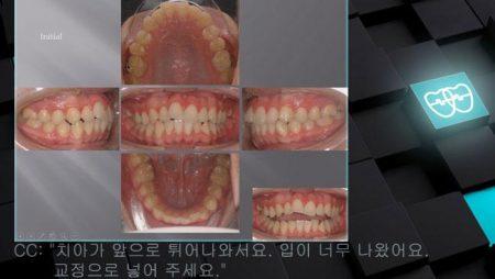 [교정 Case 547] U4L5 발치, Skeletal Class II, Gummy Smile Possibility, Protrusion.