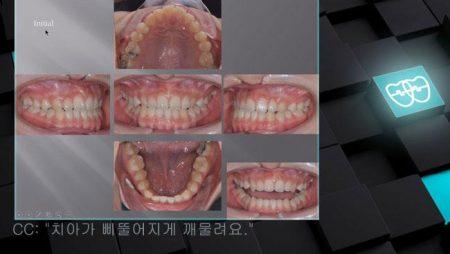 [교정 Case 938] 비발치, Cl III, Anterior Crossbite, Functional Shift, Dental Midline Problem.